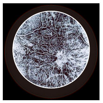 血管新生を示す小さな癌の断面