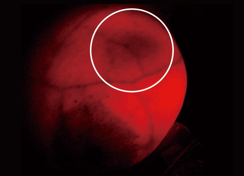 胸の1時の位置にモヤモヤとうす暗い「血管新生」の影がある画像