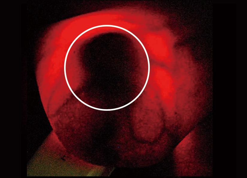 胸に大きな暗い「血管新生」の影がある画像